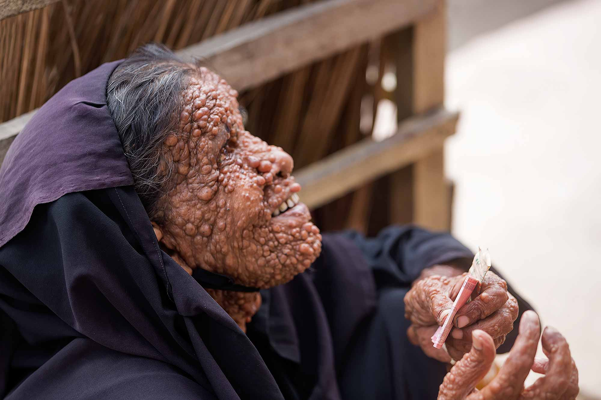 A woman in the streets of Dhaka with Neurofibromatosis. © Ulli Maier & Nisa Maier