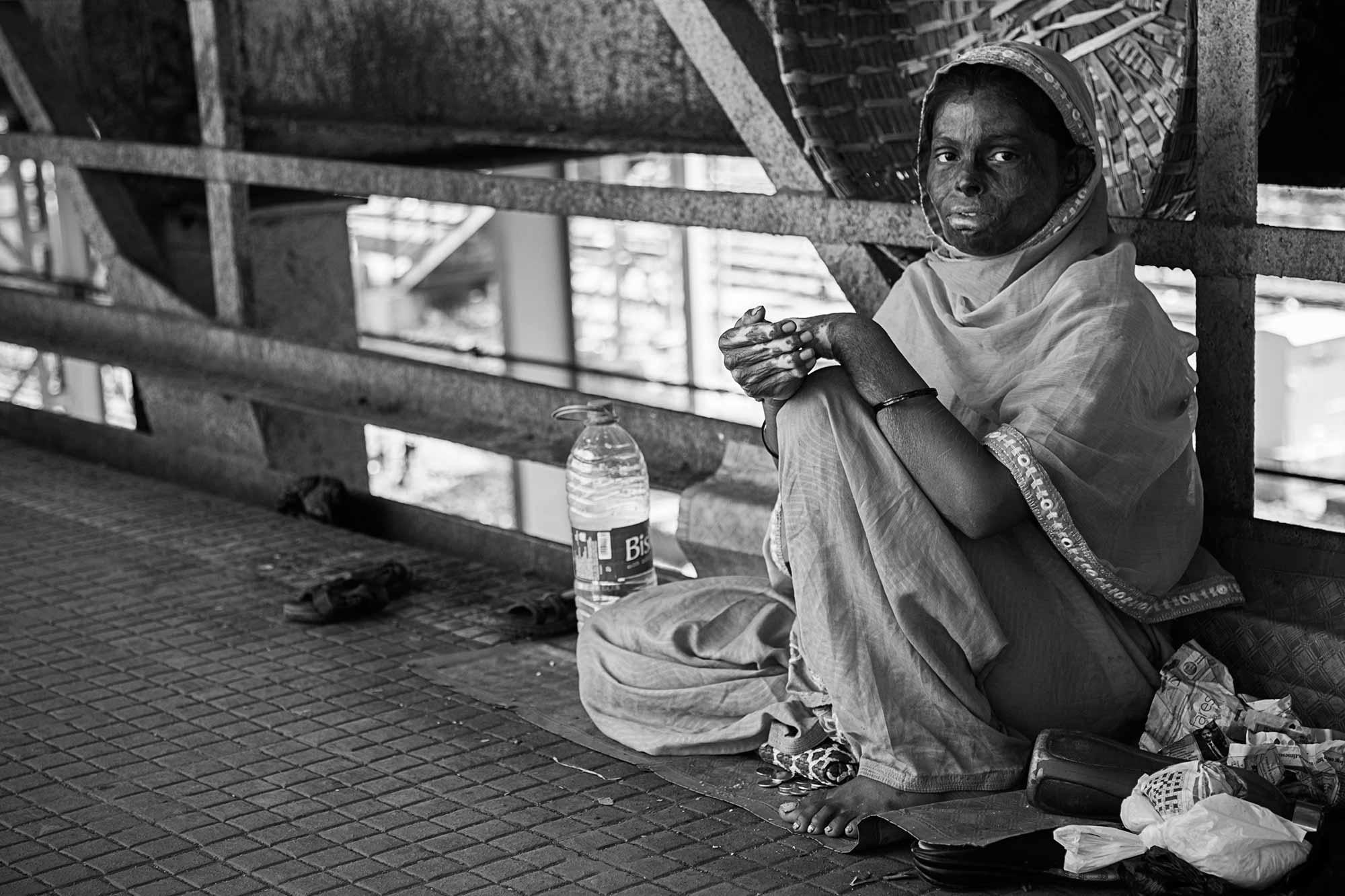 acid-victim-woman-streets-mumbai-india