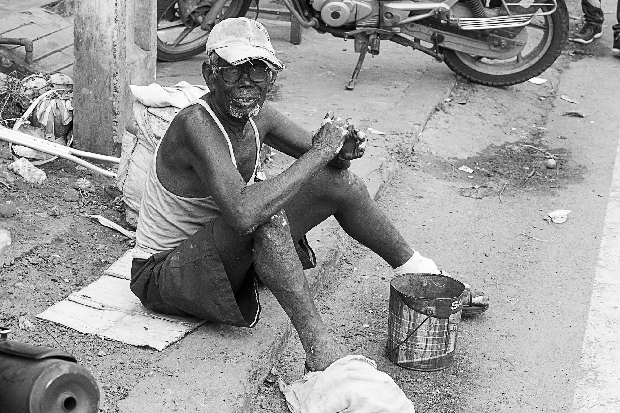 disfigured-man-visakhapatnam-india-1