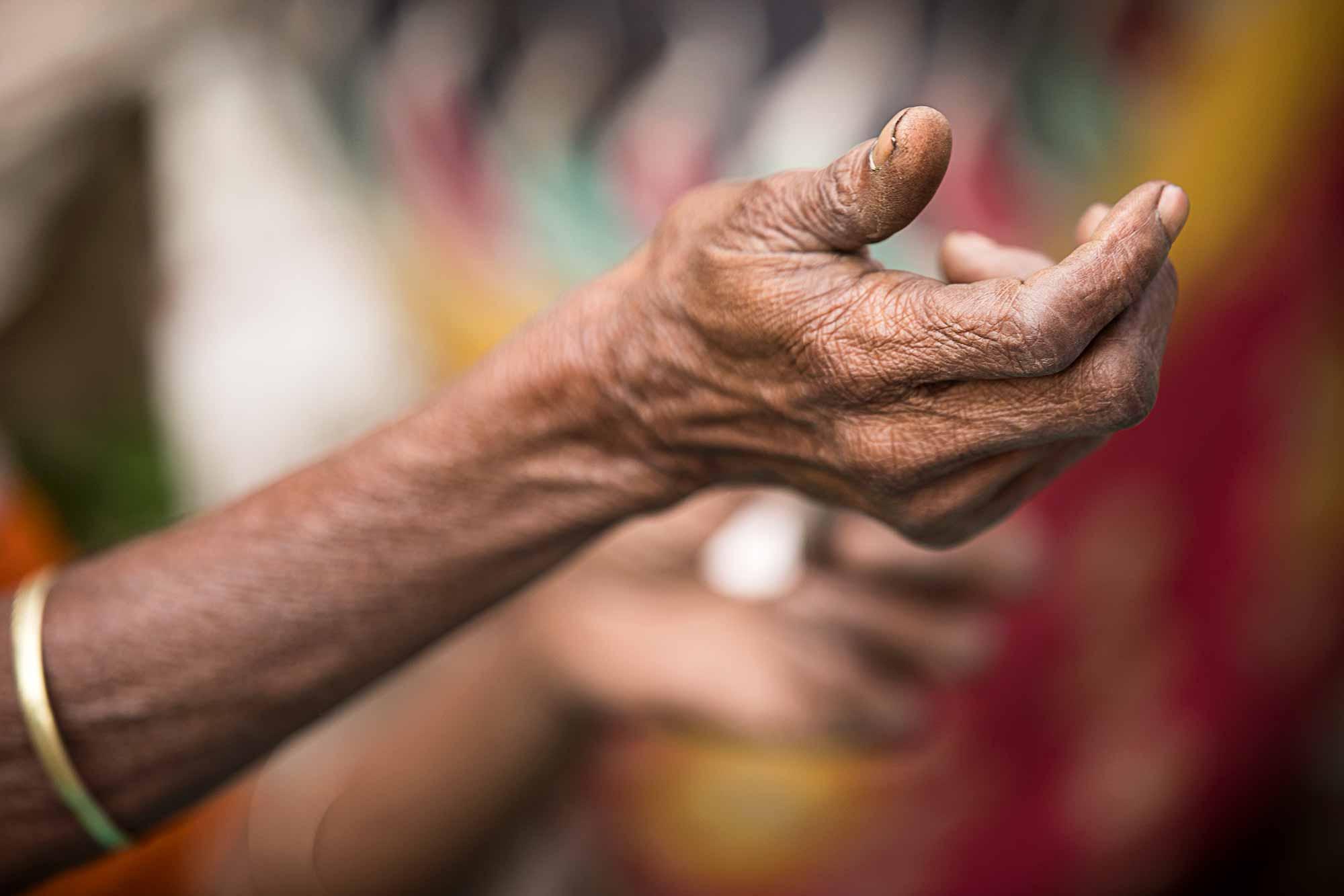 hand-woman-wrinkles-kolkata-india